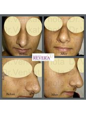 Rhinoplasty - Revera Cosmetic Surgery & LASER Centre