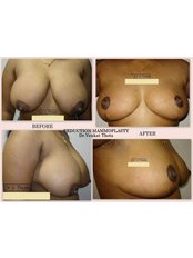 Breast Lift - Revera Cosmetic Surgery & LASER Centre