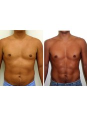 Abdominal Etching - Dr. R. K. Mishra- Plastic & Cosmetic Surgeon -SIPS