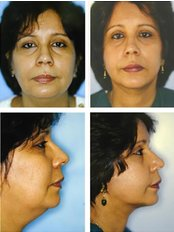 Facelift - Dr. R. K. Mishra- Plastic & Cosmetic Surgeon -SIPS