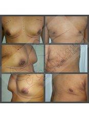 Gynecomastia - Dr Sumit Malhotra - SIPS Hospital