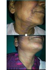 Facelift - Dr Sumit Malhotra - SIPS Hospital