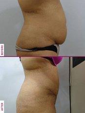 Tummy Tuck - Allure Medspa - Andheri