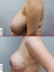 Breast Reduction - Allure Medspa - Andheri