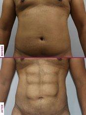 Liposuction - Allure Medspa - Andheri