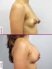 Breast Implants - Allure Medspa - Andheri