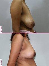 Breast Lift - Allure Medspa - Andheri