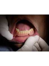 Overdentures - Bombay Cosmetic Clinic