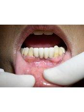 Implant Bridge - Bombay Cosmetic Clinic