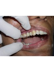 Immediate Implant Placement - Bombay Cosmetic Clinic