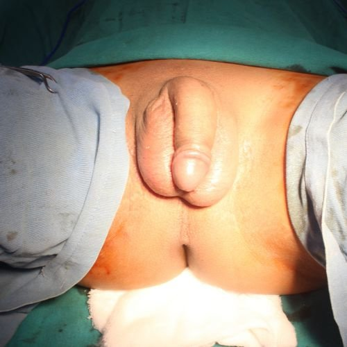 results Transsexual surgery
