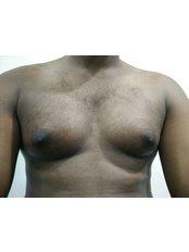Gynecomastia - Silkee Cosmetology Laser Centre