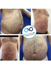 Liposuction  - Donnybrook Cosmetic and Wellness Clinic