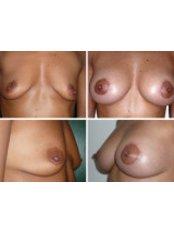 Breast Augmentation - Dr. Thomas Savoia