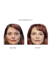 Eyelid Surgery - Essential Aesthetics-Rome ,Italy