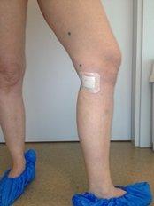 Vein surgery with bio-glue - Baltic Health Tourism