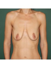 Breast augmentation with round implants (including the price of implants) - Estetines Chirurgijos Centras