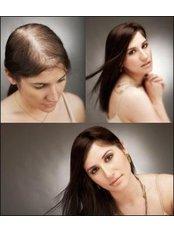 Hair Transplant - Sante Plus