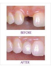 Dental Implants - Sante Plus