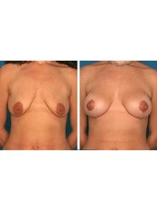 Breast Implants - Sante Plus