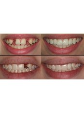 Dental Implants - Sante Plus