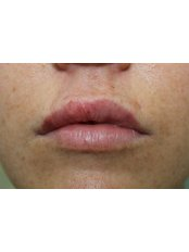 Lip Augmentation - KPJ Johor Specialist Hospital