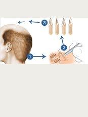 Cancun Hair Transplant - Av Kabah, Cancun, Quintana Roo, 77500,