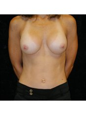 Breast Implants - Perfection Plastic and Reconstructive Center
