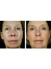 Facelift - Perfection Plastic and Reconstructive Center