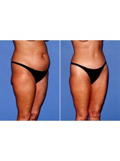 Liposuction - Perfection Plastic and Reconstructive Center