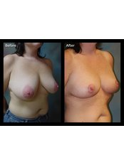 Breast Lift - Perfection Plastic and Reconstructive Center