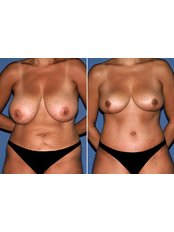 Breast Reduction - Perfection Plastic and Reconstructive Center