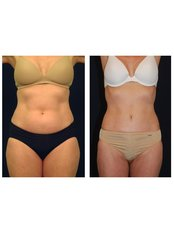 Tummy Tuck - Perfection Plastic and Reconstructive Center