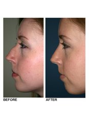 Rhinoplasty - Perfection Plastic and Reconstructive Center