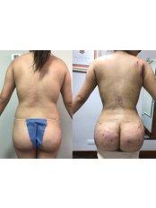 Back Liposuction - Dr. Alvar García -Reynosa Branch