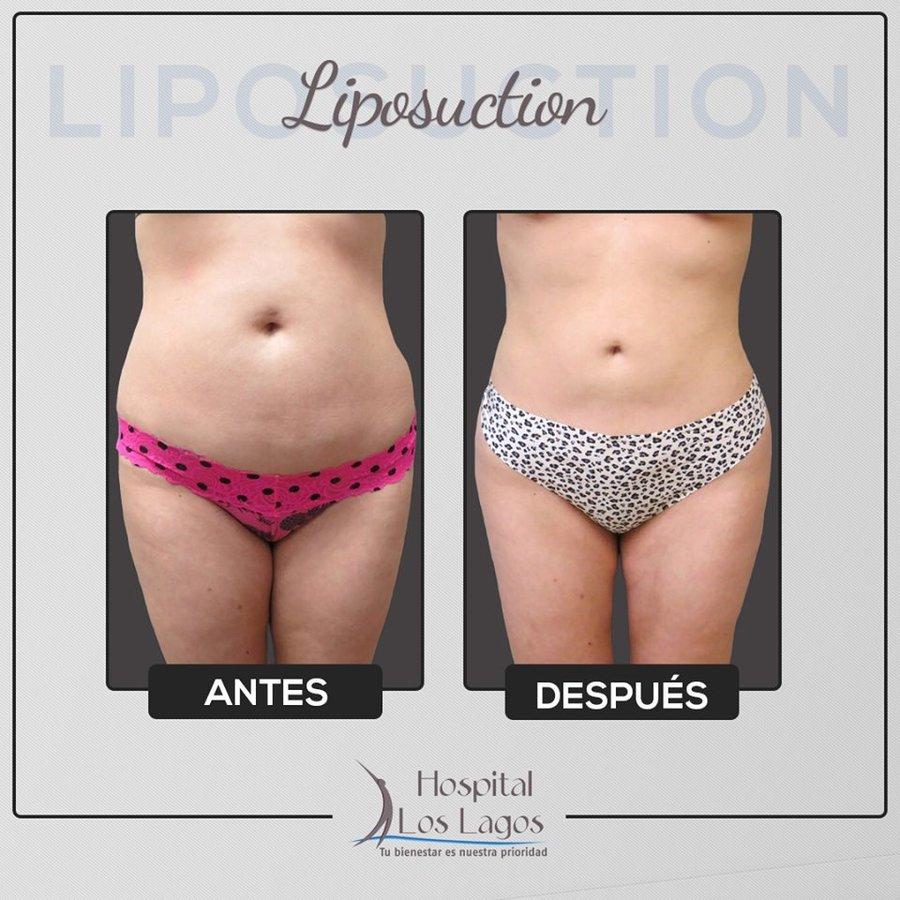 Liposuction Cost Mexico