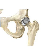 Hip Replacement - Oasis of Hope Health Group