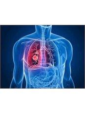 PET - Positron Emission Tomography - Sante Plus