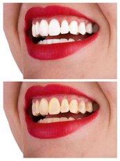 Teeth Whitening - Sante Plus