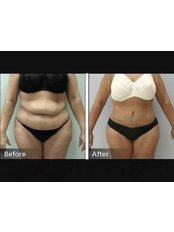 Belly Button Reshaping - Sante Plus