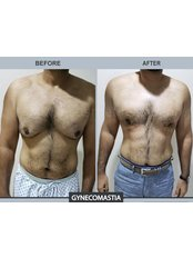Gynecomastia - Aesthetic Shapes