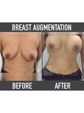 Breast Augmentation - Aesthetic Shapes