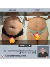 Tummy Tuck - Aesthetic Shapes