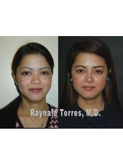 Rhinoplasty - Dr. Raynald Torres Enhancements Skin and Cosmetic Surgery Alabang