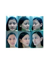 Alarplasty - Dr. Karlo Capellan - Symmetry Plastic Surgery