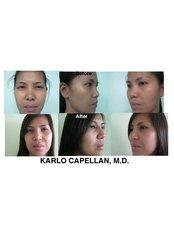 Rhinoplasty (gortex, silicone, cartilage) - Dr. Karlo Capellan - Symmetry Plastic Surgery