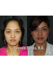 rhinoplasty - Dr Raynald Torres Enhancements Cosmetic Surgery Makati