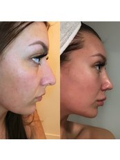 Nasenkorrektur - KCM Clinic