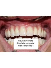 Dental Implants - Doctor Poland
