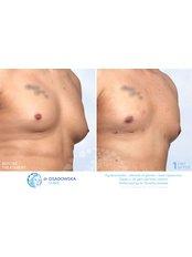 Gynecomastia - Dr Osadowska Clinic